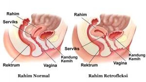 Rahim Retrofleksi